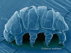 Foto por microscopia electrónica de barrido de un ejemplar de Echiniscus madonnae.