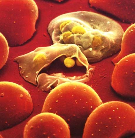 malaria_sangre